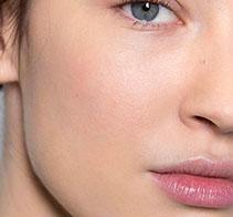 Controla la seborrea y  disminuye el tamaño de  los poros.