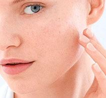 Trata el acné y mejora las  cicatrices post-acné.