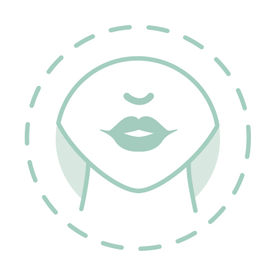 rellenos de labios con acido hialuronico maria linda aplicacion