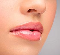 rellenos de labios con acido hialuronico maria linda filtrum